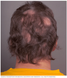 ریزش مو به شکل دایره دایره