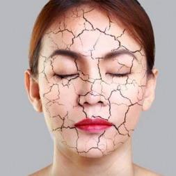 درمان ۱۰۰% خشکی پوست با جدیدترین متد درمان زیر نظر متخصصان پوست
