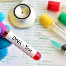 نمونه گیری برای [آزمایش DNA دی ان ای] چگونه انجام می شود؟