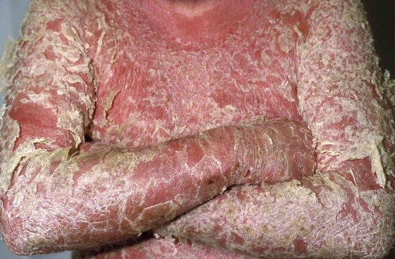 نوع نادر پسوریازیس اریترودرمیک