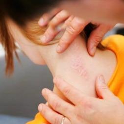 پسوریازیس | موثرترین راه های درمان پسوریازیس