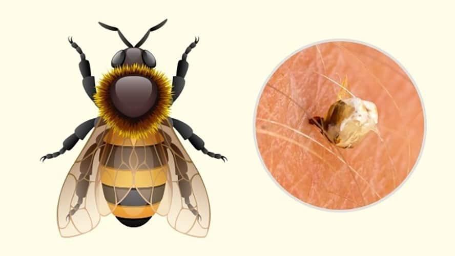 محل نیش حشرات زنبور عسل
