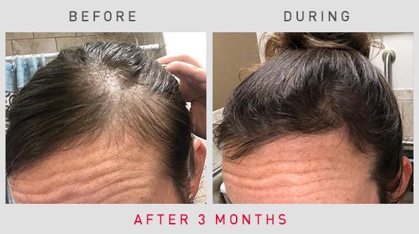 لیزر تراپی مو و رشد مو